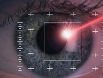 excimer-laser-kimlere-uygulanamaz